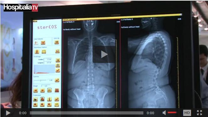 Les rencontres HospitaliaTV aux JFR 2016 : EOS IMAGING