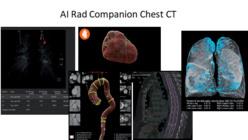 Détection automatique des lésions pulmonaires et segmentation du cœur, de l'aorte thoracique, des vertèbres dorsales et des poumons. ©Siemens