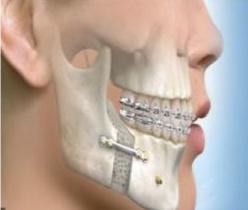 Chaîne numérique de planification des cas de chirurgie orthognatique.