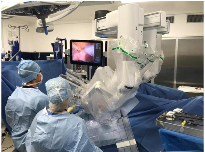 Les bras du robot chirurgical multiplient la dextérité du chirurgien