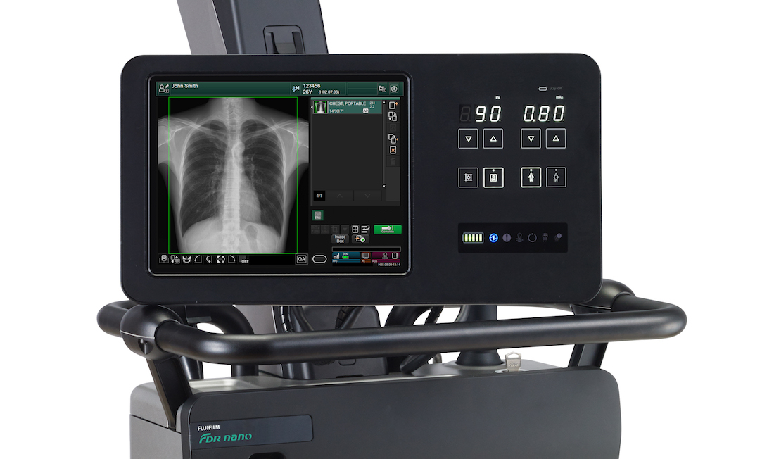 Un module d'intelligence artificielle ReiLi peut déjà être embarqué sur le mobile FDR NANO pour les examens de pneumologie, et le sera prochainement sur tous les mobiles Fujifilm. ©Fujifilm