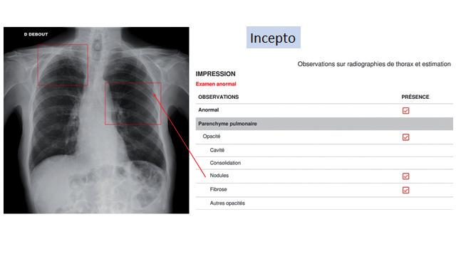 L'IA facilite l'interprétation des radiographies du thorax réalisées pour les urgentistes. ©Incept