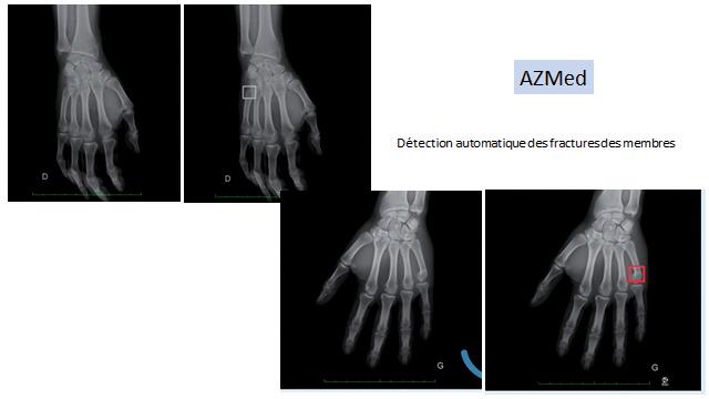 La même plateforme est utilisée pour détecter également les fractures des membres inférieurs et supérieurs. ©AZMed
