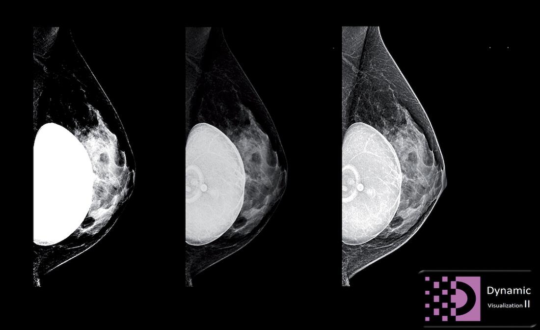 DYN II : analyse intelligente des structures du sein au service de la dynamique de l'image, pour un diagnostic facilité. ©DR