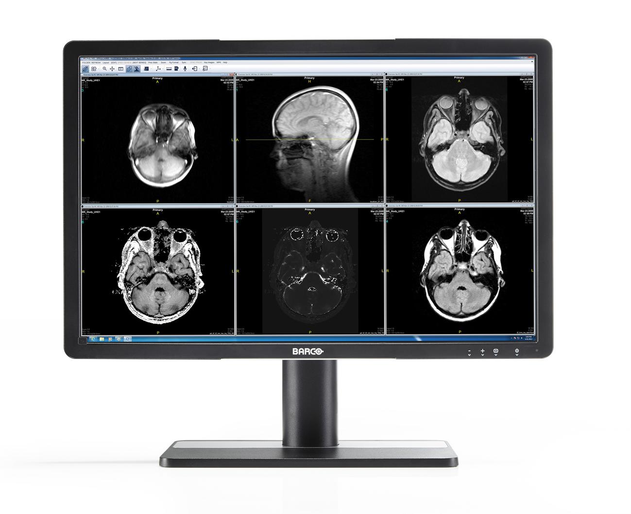 Écrans cliniques : comment la haute qualité de leurs images renforce la sécurité du patient tout en améliorant les processus cliniques