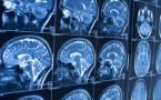 Ségur numérique : les radiologues en première ligne de la transformation de la Santé !