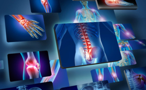 L'Intelligence Artificielle en imagerie médicale : gestation prolongée pour la filière en France