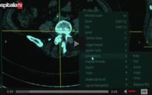 Les rencontres HospitaliaTV aux JFR 2016 : FUJIFILM MEDICAL SYSTEMS