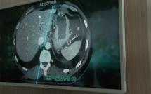 Les rencontres HospitaliaTV aux JFR 2019 : FUJIFILM